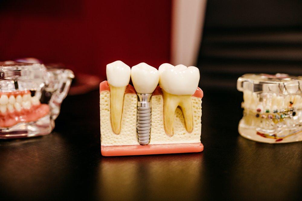 Få lavet dine tandimplantater i Holbæk